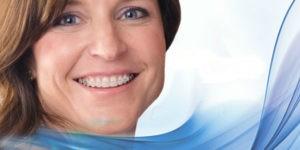 ortodoncia para adultos - Clínica Dental Ruiz de Gopegui