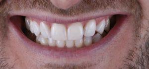 blanqueamiento dental - clinica ruiz de gopegui