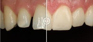 caso real carillas porcelana - Clínica Dental Ruiz de Gopegui