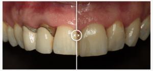 caso real coronas de zirconio - clinica ruiz de gopegui