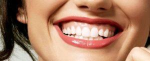 diseno digital de sonrisa - Clínica Dental Ruiz de Gopegui