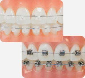ortodoncia damon - Clínica Dental Ruiz de Gopegui