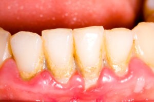 periodontitis - Clínica Dental Ruiz de Gopegui