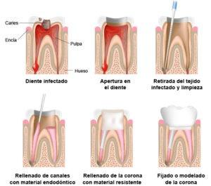 ENDODONCIA - Clínica Dental Ruiz de Gopegui