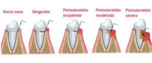 Periodontitis - clinica dental ruiz de gopegui