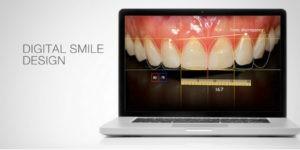 diseno digital de sonrisa - clinica dental ruiz de gopegui