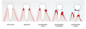 periodontitis cronica - clinica dental ruiz de gopegui