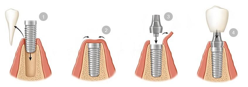 Preguntas frecuentes sobre implantes dentales - Colocación de implantes dentales