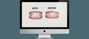ortodoncia invisible - clinica dental ruiz de gopegui