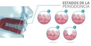 estados de la periodoncia - clinica dental ruiz de gopegui
