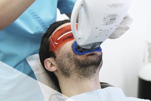 Blanqueamiento dental - Clínica Dental Ruiz de Gopegui
