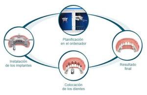 implantes guiados - clinica ruiz de gopegui