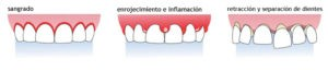 sintomas periodontal - clinica dental ruiz de gopegui
