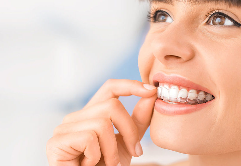 Gopegui afecta la ortodoncia invisible al habla