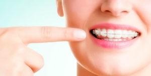 ortodoncia bracket dientes sanos hombre mayores dental dientes fuertes esteticos