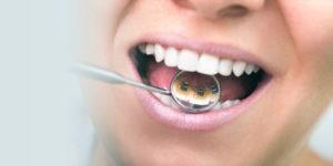 ortodoncia estetica - clinica dental ruiz de gopegui