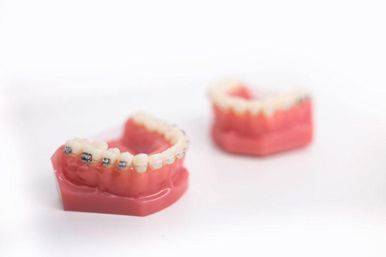 Ortodoncia con brackets y tipos - Clínica Ruiz de Gopegui
