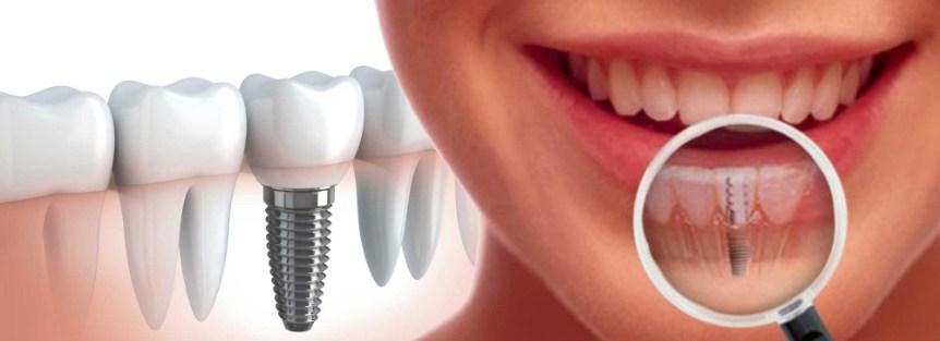 Gopegui implantes dentales cuando recurrir