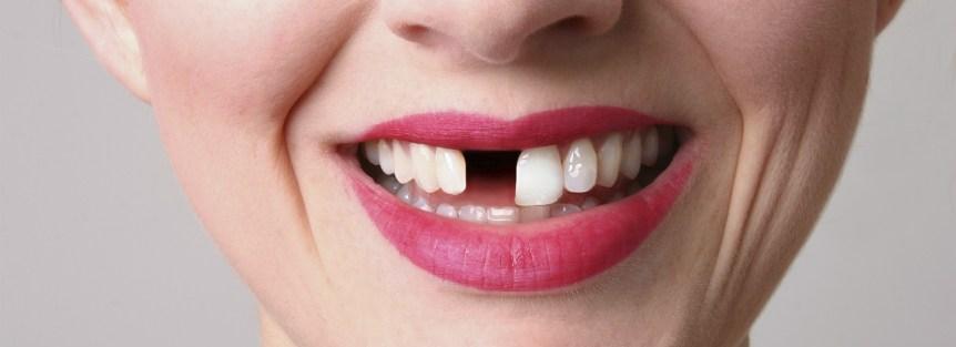 Gopegui 4 motivos para recurrir los implantes dentales al perder un diente