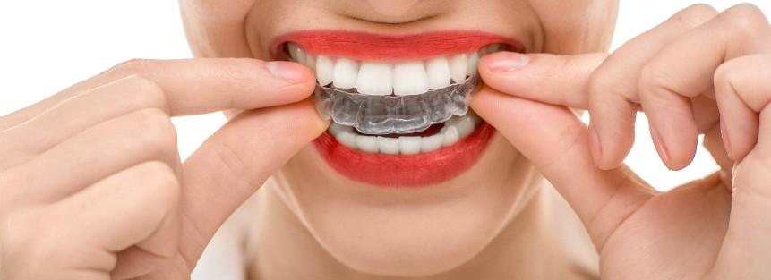Gopegui 5 ventajas de la ortodoncia invisible