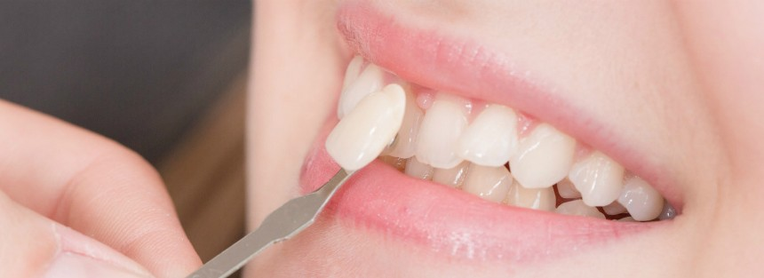 Gopegui carillas dentales que son y que pueden hacer por ti