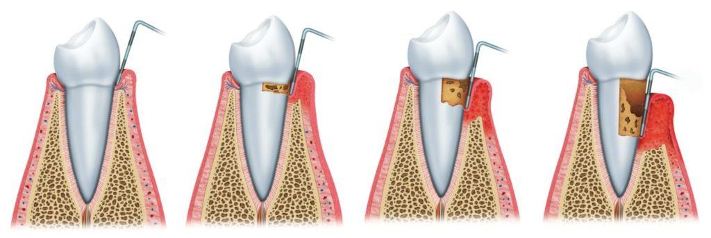 Gopegui causas y tratamiento de la periodontitis