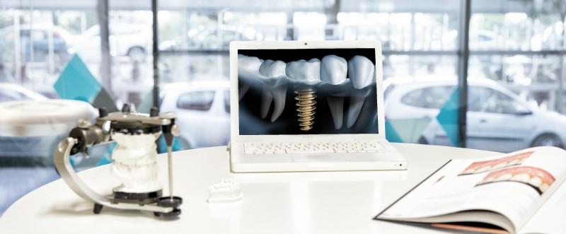 Gopegui como se colocan los implantes dentales