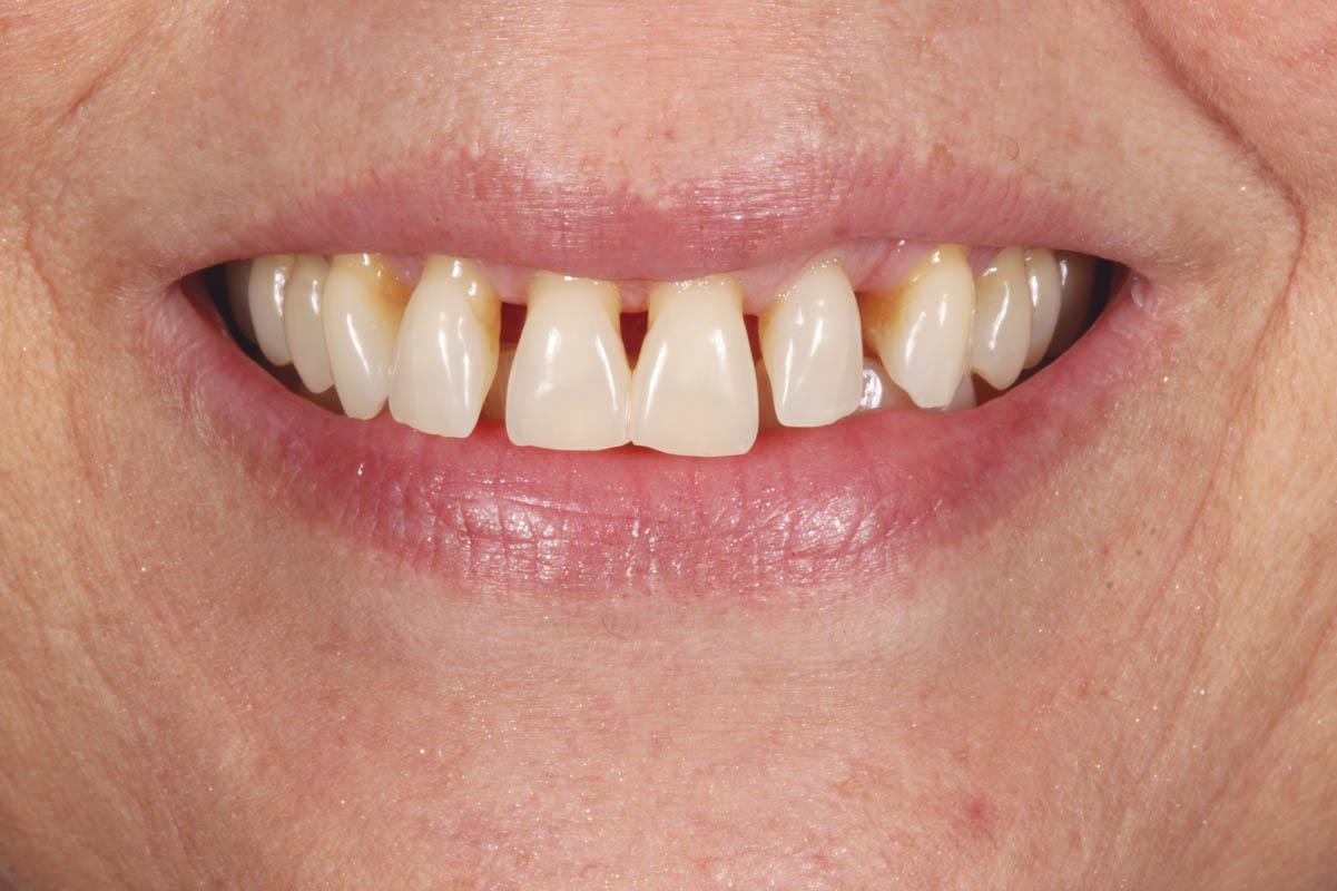 Gopegui facetas de porcelana en paciente con secuelas esteticas de causa periodontal