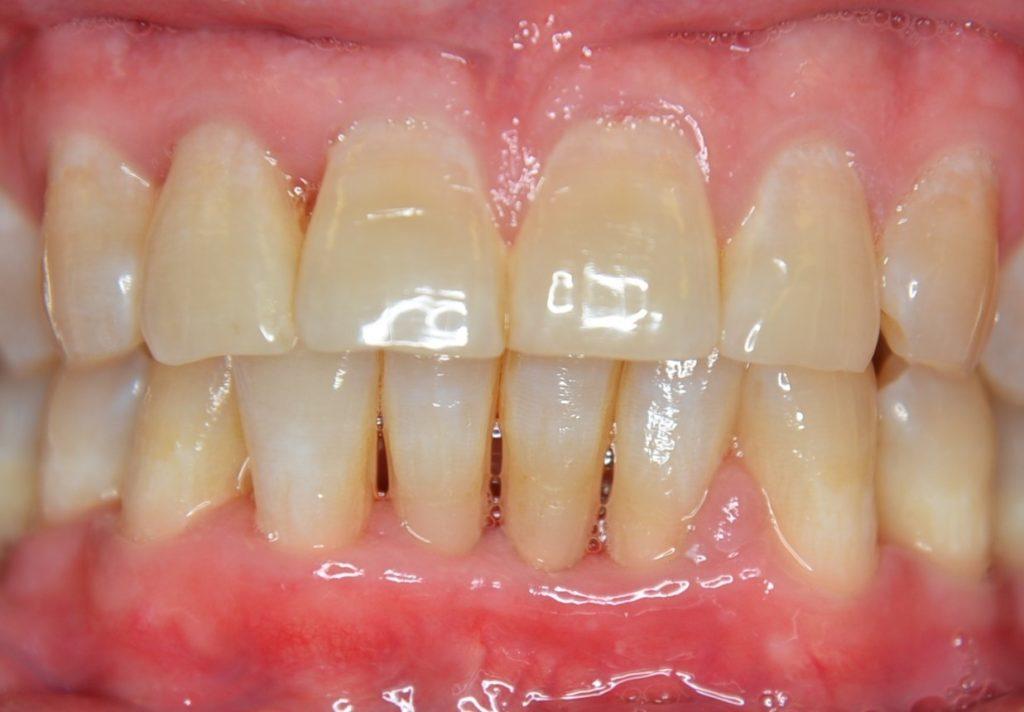 Gopegui la periodoncia en hombres de mediana edad