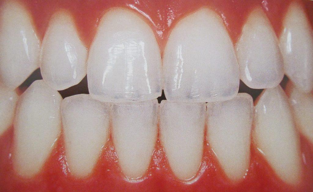 Gopegui nuevo descubrimiento sobre el esmalte dental