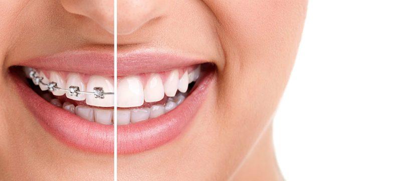 Gopegui ortodoncia invisible u ortodoncia tradicional cual elegir