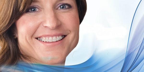 Gopegui ortodoncia para adultos