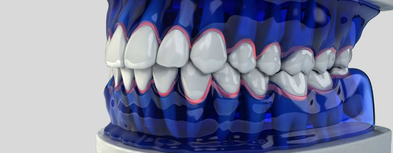 Gopegui periodontitis agresiva cual es el mejor tratamiento