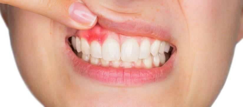 Gopegui periodontitis sintomas y tratamientos