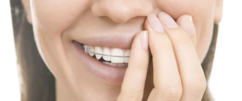 Gopegui que tipos de ortodoncia existen