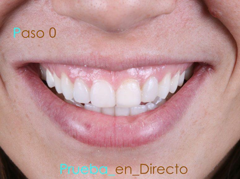 Diseño de sonrisa. Paso 0 - Clínica Dental Gopegui