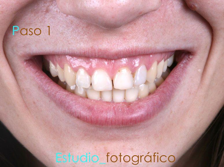 Diseño de sonrisa. Paso 1 - Clínica Dental Gopegui