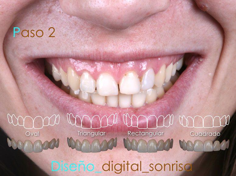 Diseño de sonrisa. Paso 2 - Clínica Dental Gopegui