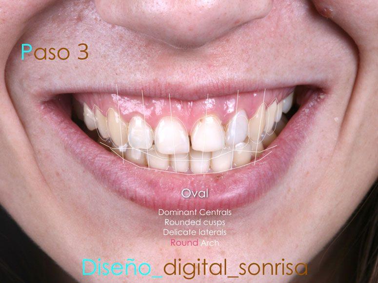 Diseño de sonrisa. Paso 3 - Clínica Dental Gopegui