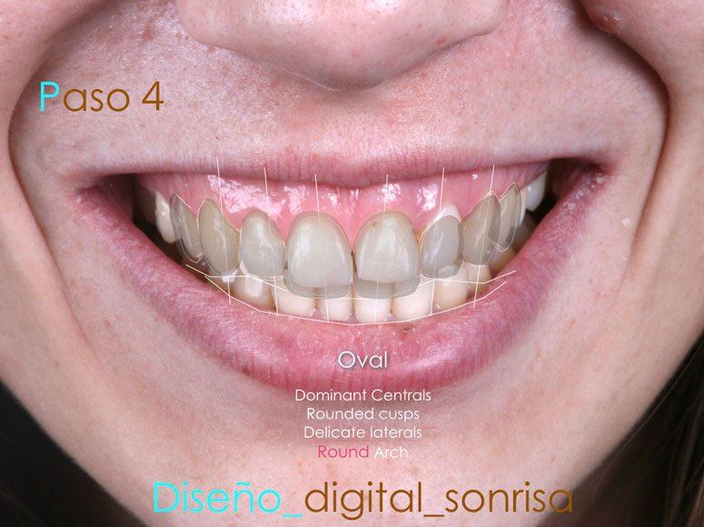 Diseño de sonrisa. Paso 4 - Clínica Dental Gopegui