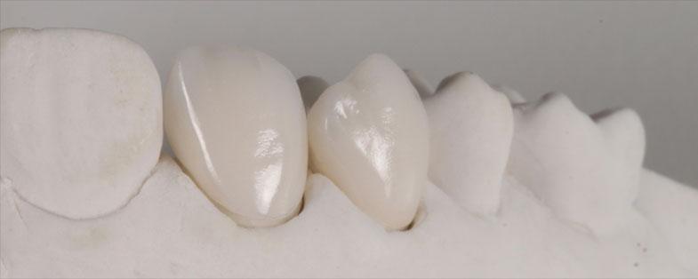 Carillas Dentales - Clínica Dental Gopegui