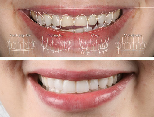 Carillas Porcelana - Clínica Dental Gopegui