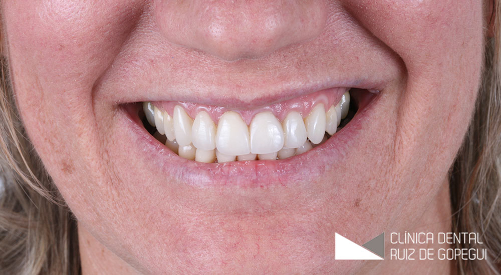 Caso: Carillas dentales antes y después