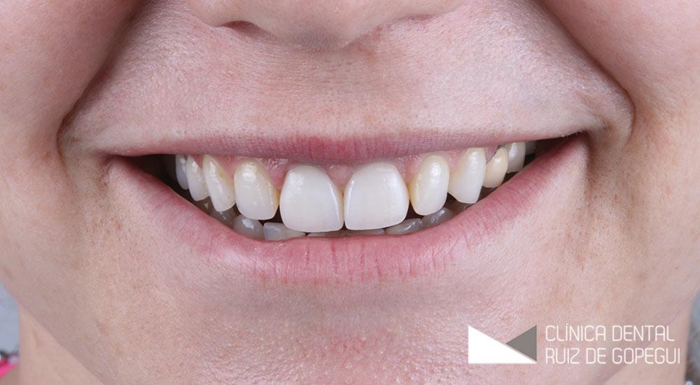 Caso: Coronas dentales antes y después