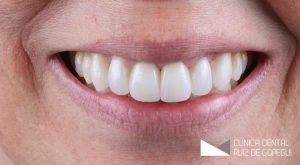Caso: Rehabilitación estética del paciente periodontal antes y después