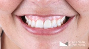 Caso: Fundas dentales antes y después
