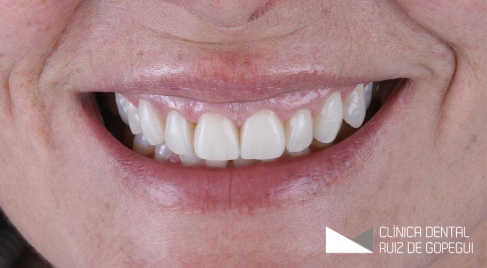 Caso: Alargamientos coronarios y Carillas de Porcelana antes y después