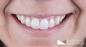 Caso: Ortodoncia antes y después