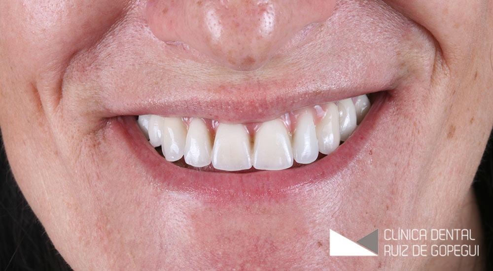 Caso: Rehabilitación oral con Implantes dentales antes y después