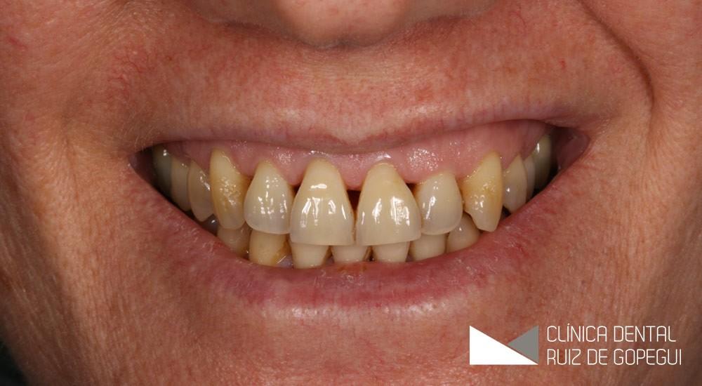 Caso: Carillas dentales